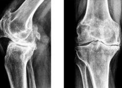 Склероз коленного сустава лечение отёк, боль, сильное посинение галеностопного сустава