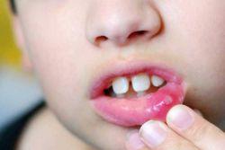 стоматит признаки и лечение у детей