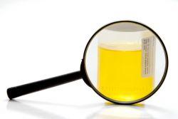 повышенные лейкоциты у грудничка в моче причины