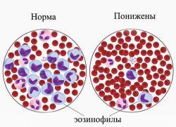 Анализ крови эозинофилы понижены