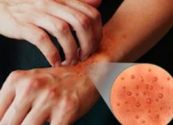 холодовая аллергия на руках