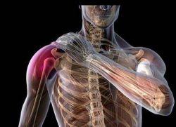 Как лечить плексит плечевого сустава у новорожденных гимнастика при травмах голеностопного сустава