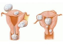 Миома матки лечение