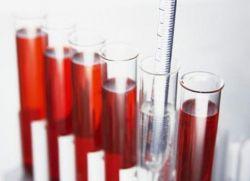 почему понижен гемоглобин