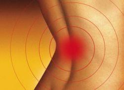 Радикулит симптомы и лечение в домашних условиях