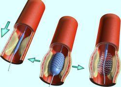 стентирование сосудов