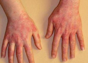 аллергия сыпь по телу 2