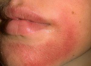 аллергия сыпь по телу 3