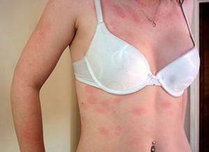 аллергия сыпь по телу 4