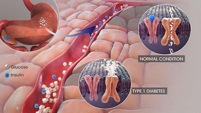 Изменения в организме диабетика