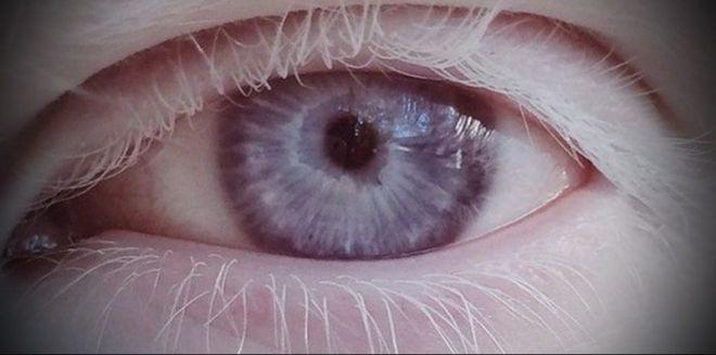 Глаз альбиноса