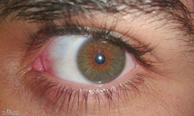 plica semilunaris swollen eye allergies - 610×366