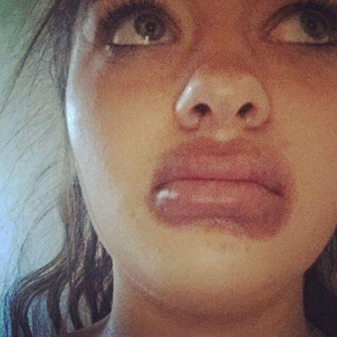 губы пылесосом