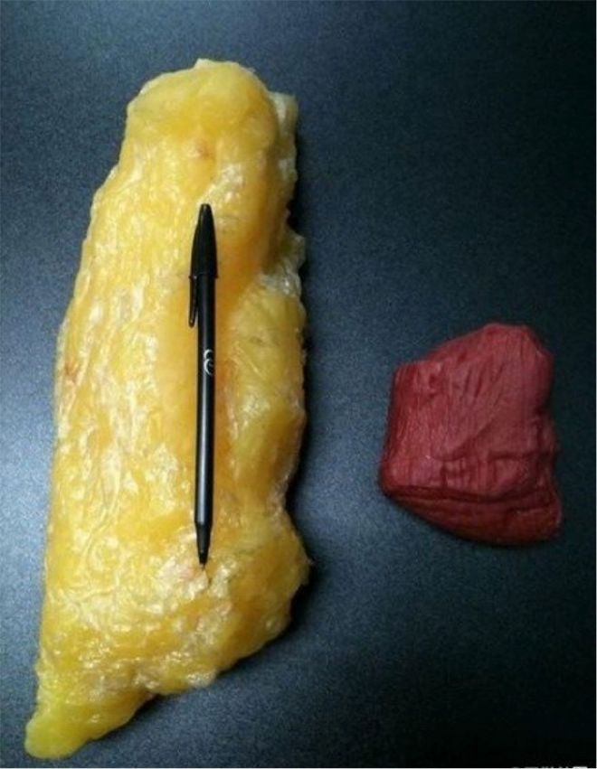 Жир и мышцы картинка