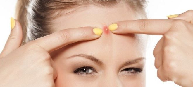 как лечить фурункул на лице