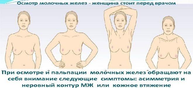 фото2 нашли уплотнение в груди