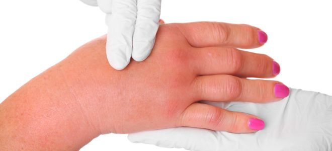 Болит и опух сустав указательного пальца локоть ломота суставы мышцы гимнастика лечение