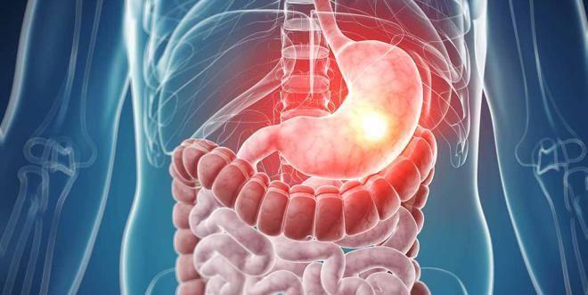 Пищеварительная система предрасположена к раковым опухолям
