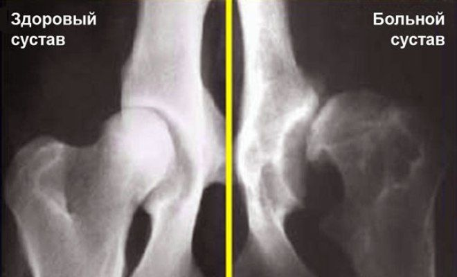 Дисплазия тазобедренных суставов у ротвейлеров ноющие боли локтевом суставе