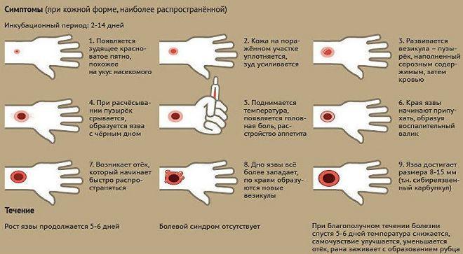 сибирская язва симптомы у человека