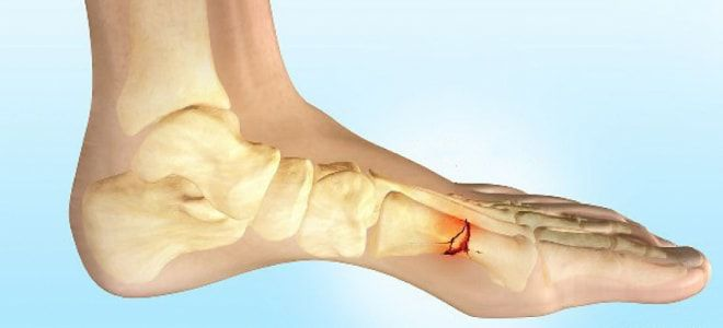перелом плюсневой кости стопы симптомы