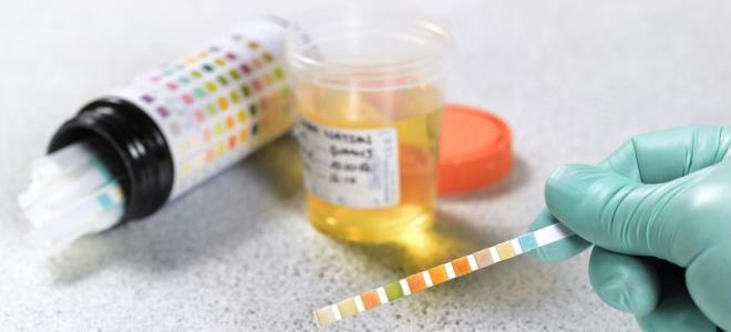 тест полоски на ацетон в моче