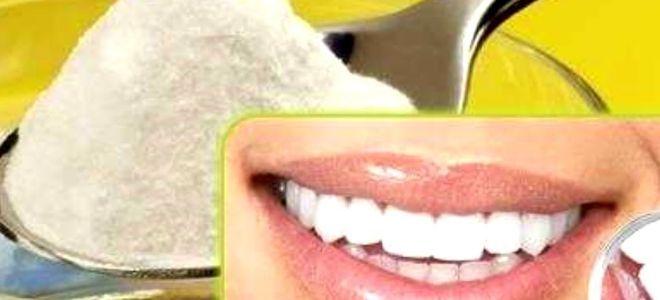 можно ли отбеливать зубы содой