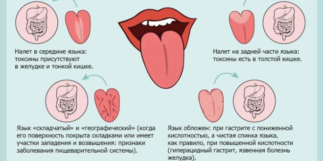 белый налет на языке  признак какого заболевания