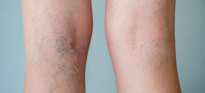 варикозное расширение вен на ногах симптомы