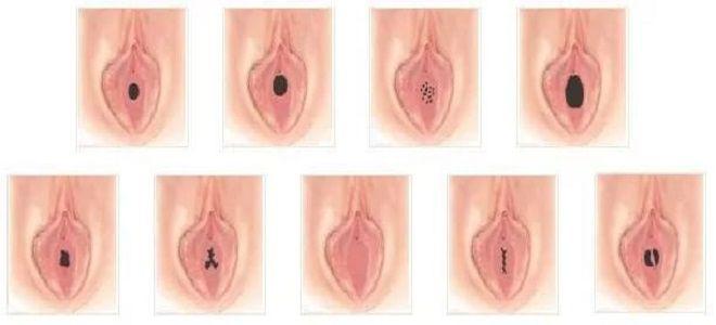 напоминаете как определить есть сперма или нету застегнула ему спине