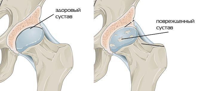 Причины возникновения коксартроза тазобедренных суставов мильгамма уколы от болей в суставах
