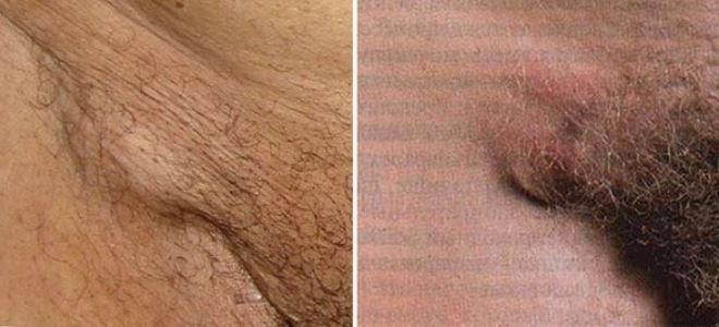 первые признаки сифилиса у мужчин