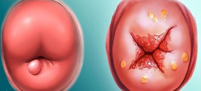 шанкр при сифилисе на шейке матки