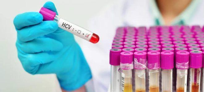 ифа на гепатит