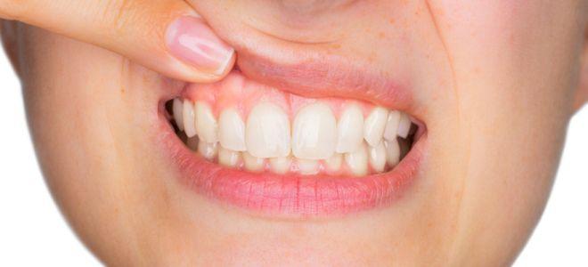 Метилурациловая мазь в стоматологии