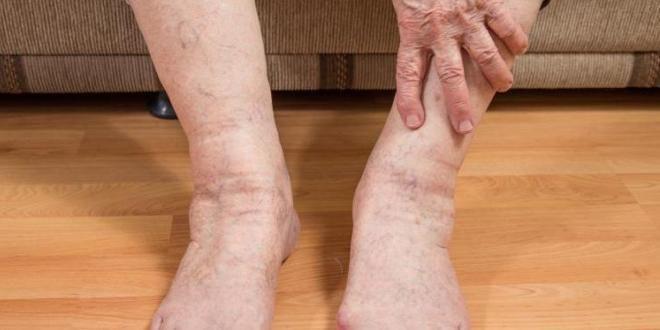 отечность ног в пожилом возрасте