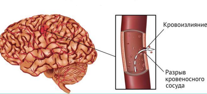 что акое геморрагический инсульт