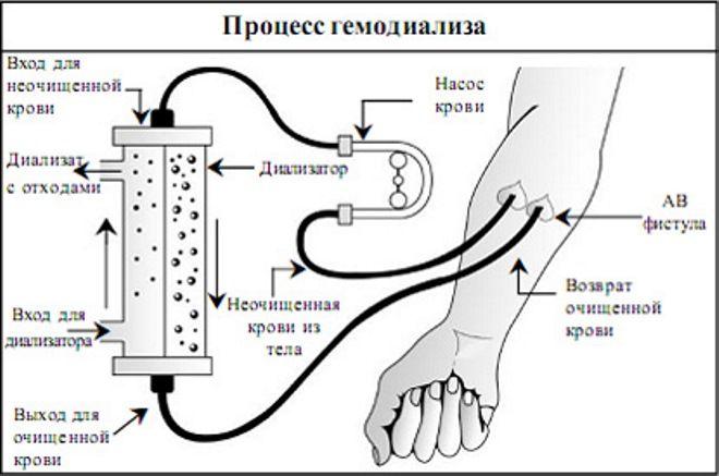 показания к гемодиализу