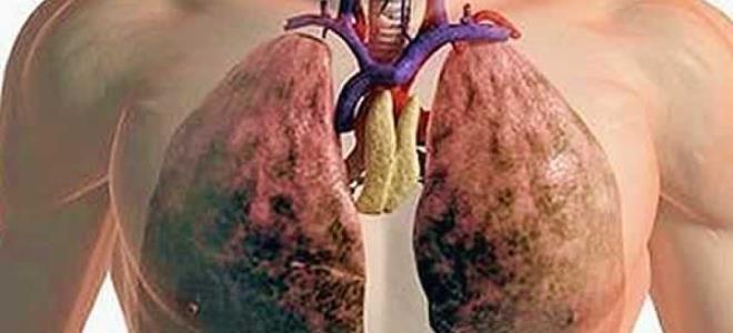 муковисцидоз легких