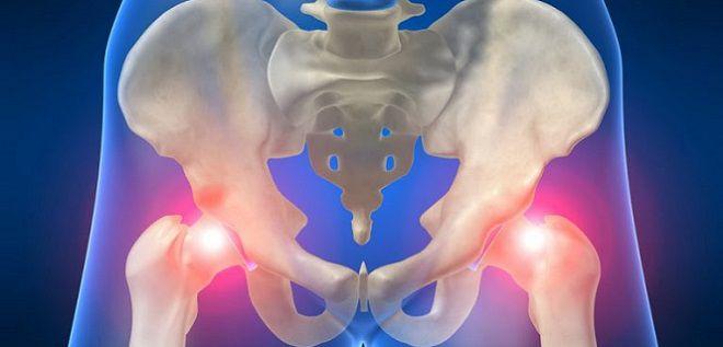 Боль в тазобедренном суставе у молодых женщин эпидемия артроза