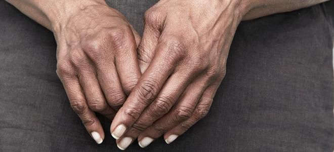 Ревматоиден артрит: лечение   Компетентно за здравето на Крем Move&Flex в България