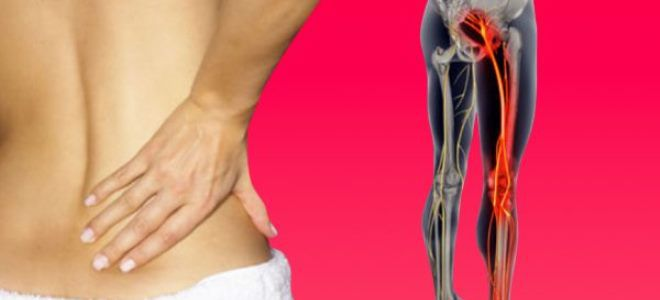 воспаление седалищного нерва симптомы