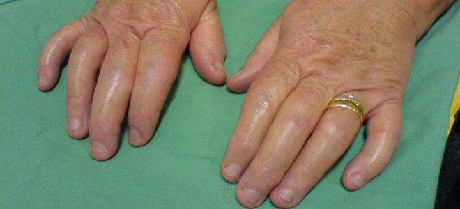 Артрит нижних конечностей симптомы и лечение народными средствами