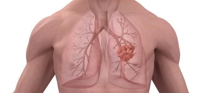 базальный пневмосклероз