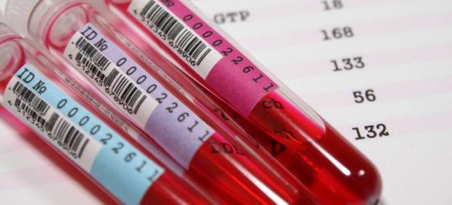 WBC анализ крови расшифровка