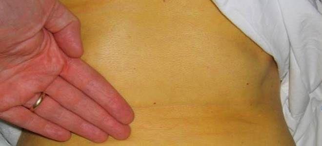 передается ли гепатит