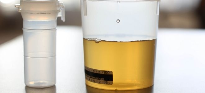 Что значит соли в моче