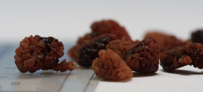 камни при мочекаменной болезни