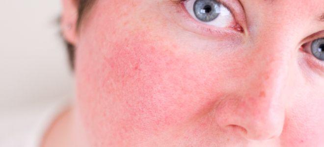Кожные заболевания на лице себорейный розацеа