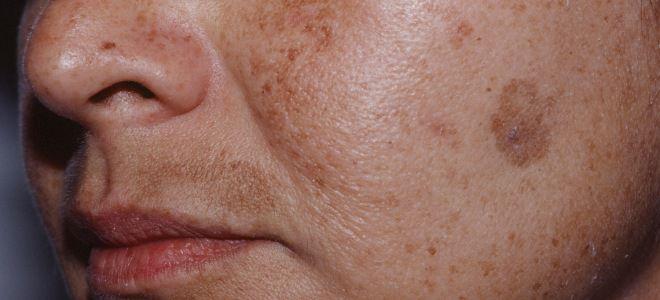 Кожные заболевания на лице хлоазма